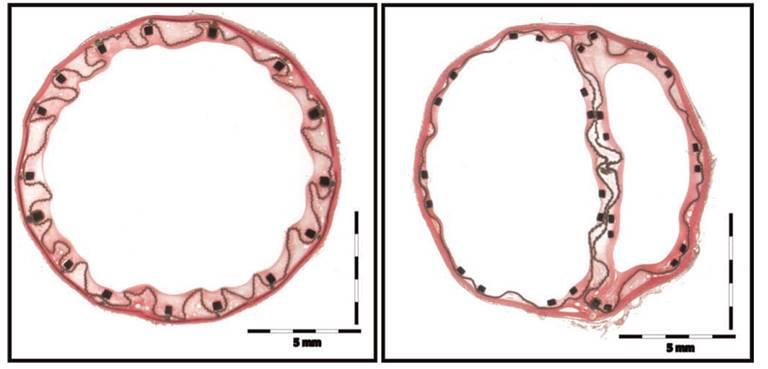 hematoxylin-eosin-stain
